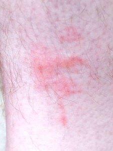 Bed bugs rash img